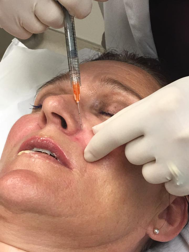 If you've ever wondered what it's like to get facial injections, I'm spilling the details on what it's like to get Botox and Volbella fillers Ripped Jeans and Bifocals